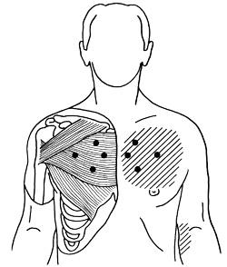 Lernia di reparto cervicale di una spina dorsale di quello che è impossibile fare