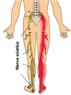 Rassegne di eliminazione di ernia intervertebrale