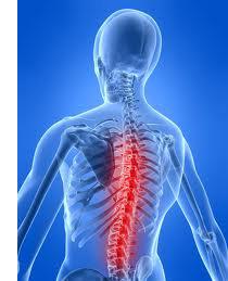 Osteochondrosis 5-6 vertebre di reparto di petto